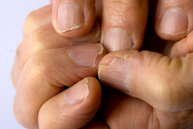 Abnormalities of Nails